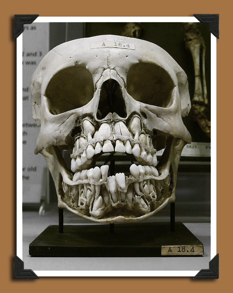 Skull with Teeth